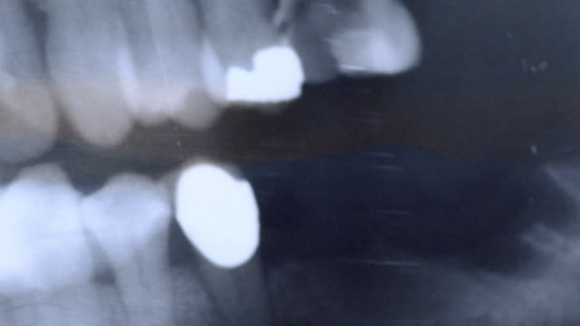a light illuminates x-ray images of teeth. - 2008 stock videos & royalty-free footage