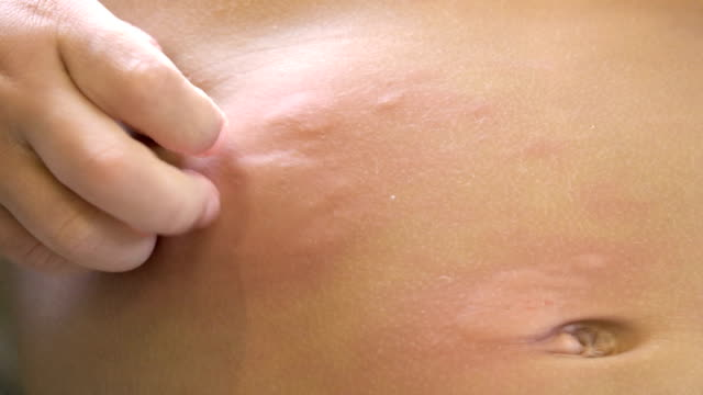 Little boy scratching from urticaria.