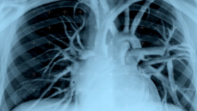 stockvideo's en b-roll-footage met live x-ray image of human torso - inademen
