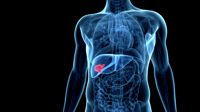liver cancer - human liver stock videos & royalty-free footage
