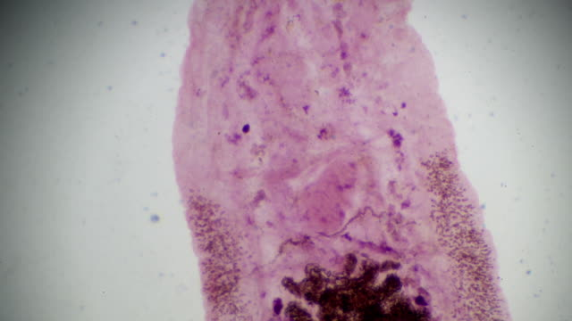 liver fluke clonorchiasis under light microscopy - worm stock videos and b-roll footage