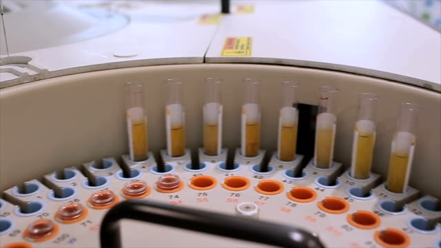 loading samples in centrifuge machine in laboratory