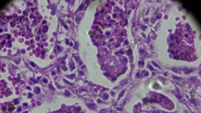 vidéos et rushes de échantillon de pathologie humaine de pneumonie lobaire sous microscopie - artère pulmonaire