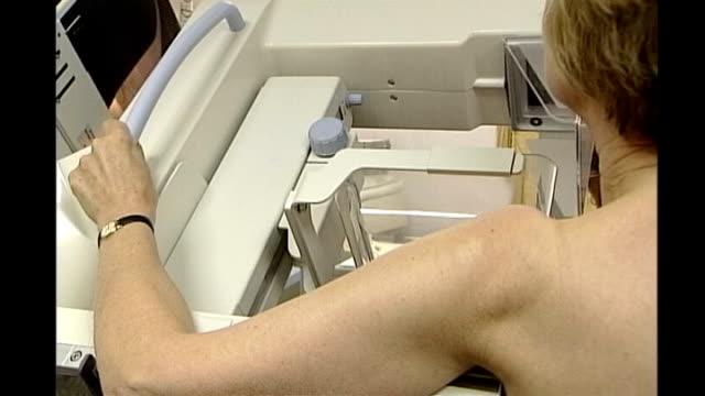 int woman having mammogram medical staff member looking at scans on lightbox - lightbox stock videos & royalty-free footage