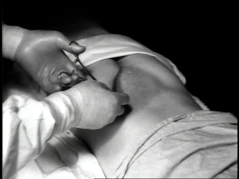 1944 b/w lower back wound being treated - chirurg stock-videos und b-roll-filmmaterial