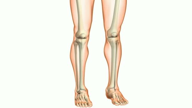 Lower leg fracture