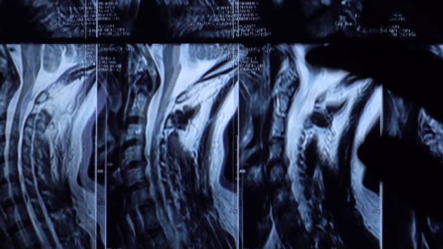 lumbar spine mrt untersuchung auf tablet - plexus lumbalis stock-videos und b-roll-filmmaterial