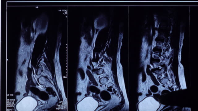 lumbar spine mri examine on tablet - lumbar vertebra stock videos & royalty-free footage