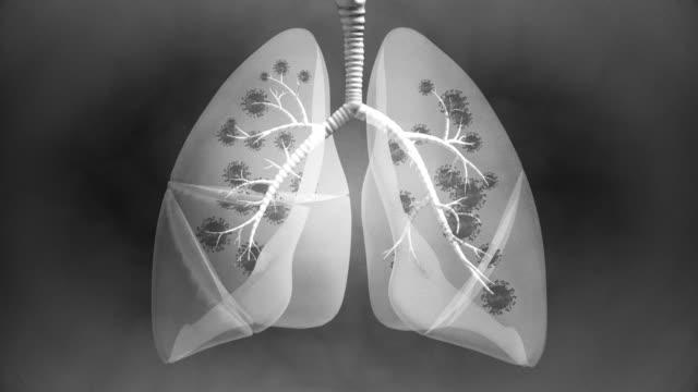 stockvideo's en b-roll-footage met longziekte view x-ray - 4k resolutie - biomedical illustration