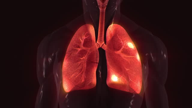 lung infection - anatomy stock videos & royalty-free footage