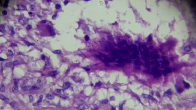 lymph nodes tuberculosis pathological sample under microscope - magnification stock videos & royalty-free footage