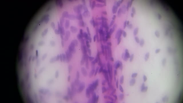 Macrophages cells under microscope