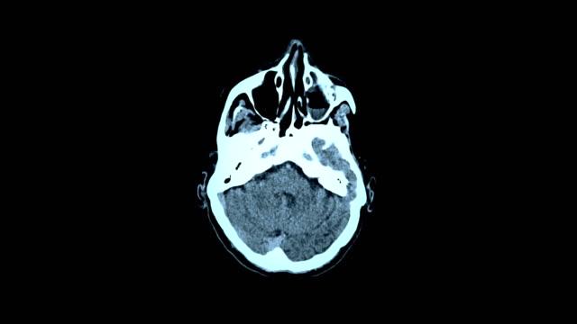 vídeos de stock, filmes e b-roll de imagem latente de ressonância magnética mri scan do cérebro - lóbulo frontal