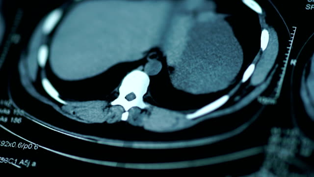 vídeos de stock e filmes b-roll de magnetic resonance imaging-ct scanning - neurologista