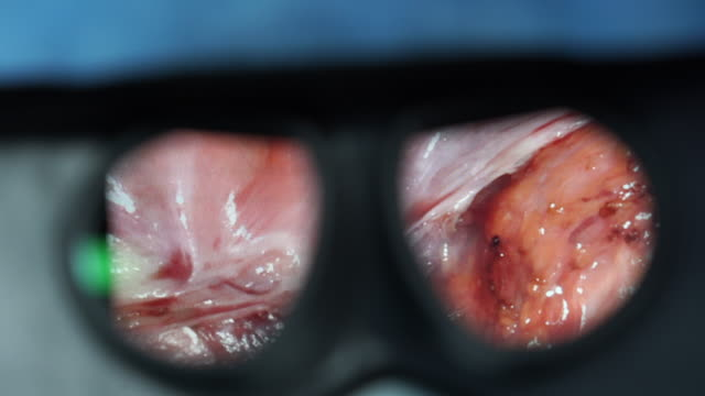 magnified view of uterine fibroids surgery through the loupes - biology stock videos & royalty-free footage