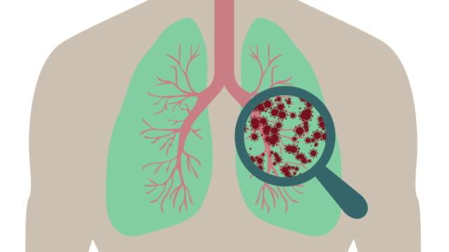 vídeos de stock e filmes b-roll de magnifying glass showing a virus in a lung - mutação genética