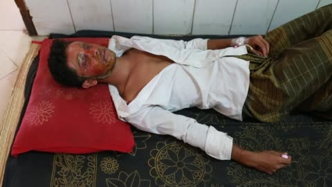 mahmudul hasan maruf, suffers from acid attack thrown by a girl cause of refusal of love has admitted in dhaka medical for treatment in dhaka,... - 16 17 years stock videos & royalty-free footage