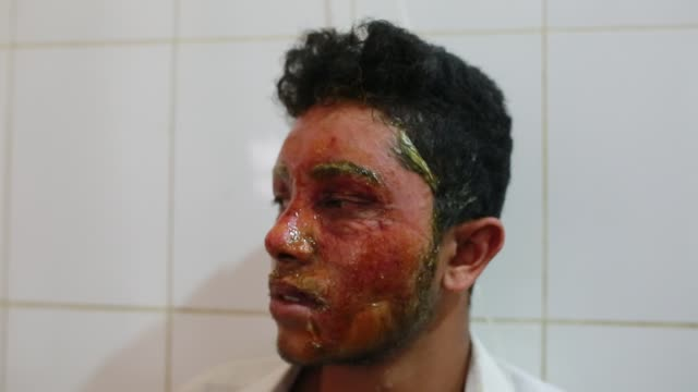 mahmudul hasan maruf suffers from acid attack thrown by a girl cause of refusal of love has admitted in dhaka medical for treatment in dhaka... - 16 17 years stock videos & royalty-free footage