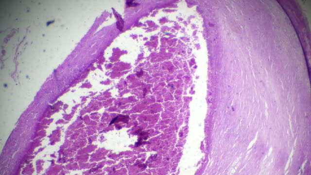 main artery atherosclerosis pathological sample under microscope - cross section stock videos & royalty-free footage