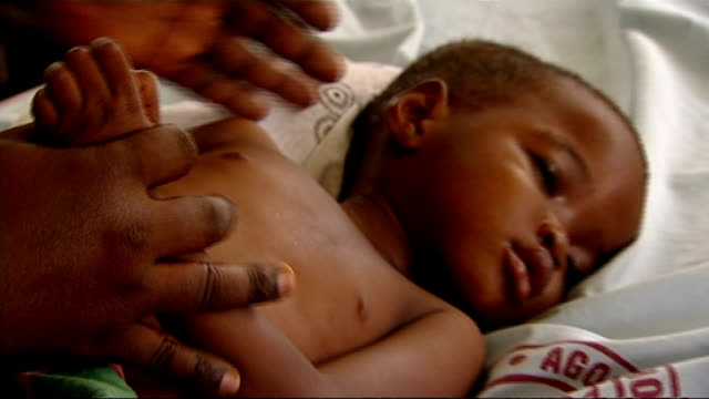 Malaria outbreak that is resistant to drugs Location Unknown INT Sick child with malaria being examined by doctors