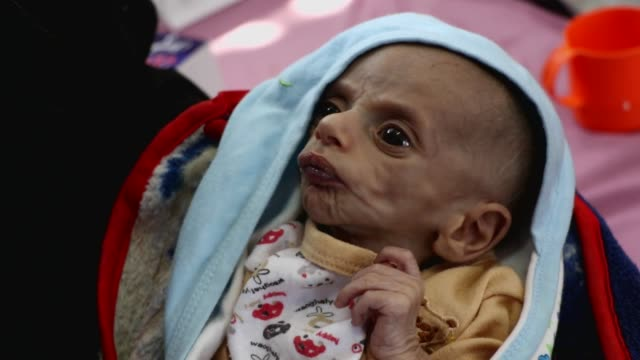 malnourished child lies on a bed as he receives treatment at a malnutrition combating center on october 10, 2020 in sana'a, yemen. the un world food... - yemen bildbanksvideor och videomaterial från bakom kulisserna