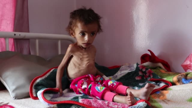 malnourished child receives treatment at the sabeen hospital on october 6, 2018 in sana'a, yemen. more than 10,000 people have been killed and about... - yemen stock videos & royalty-free footage