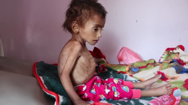 malnourished child receives treatment at the sabeen hospital on october 6, 2018 in sana'a, yemen. more than 10,000 people have been killed and about... - yemen bildbanksvideor och videomaterial från bakom kulisserna