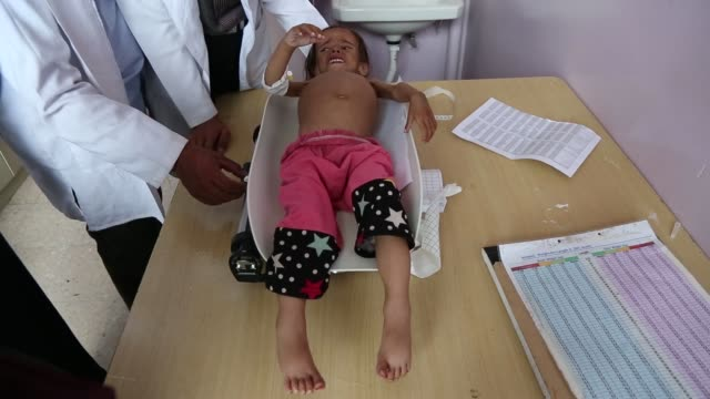 malnourished girl is weighed as she receives treatment at a hospital on september 03, 2018 in sana'a, yemen. due to more than three years and half of... - yemen bildbanksvideor och videomaterial från bakom kulisserna