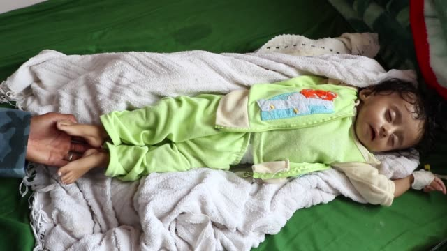 vídeos y material grabado en eventos de stock de a malnourished girl waits to be checked as she receives treatment at a hospital on september 03 2018 in sana'a yemen due to more than three years and... - delgado