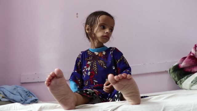 malnourished girl waits to be checked as she receives treatment at a hospital on september 03, 2018 in sana'a, yemen. due to more than three years... - yemen bildbanksvideor och videomaterial från bakom kulisserna