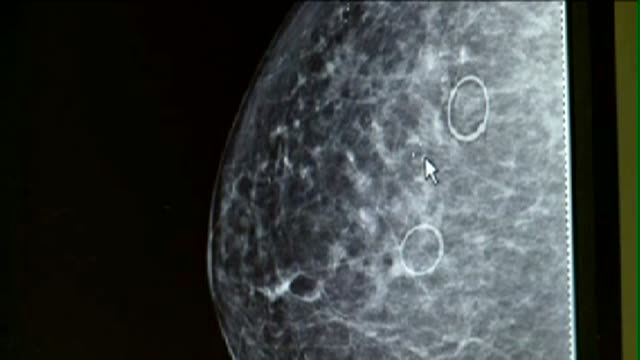 stockvideo's en b-roll-footage met mammogram x-ray - medische röntgenfoto