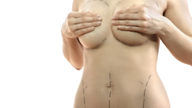 hd dolly: mammoplasty and abdominoplasty - breast augmentation stock videos and b-roll footage