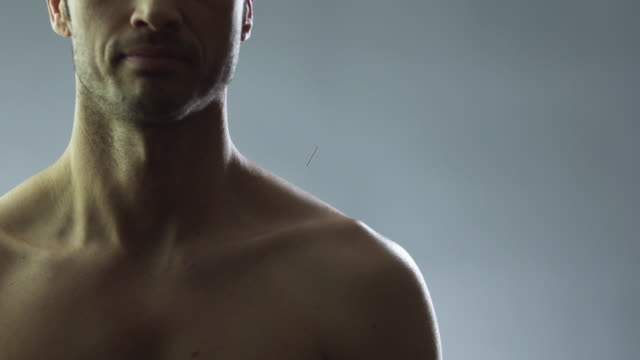 vídeos de stock e filmes b-roll de ms man applying acupuncture needles into woman's shoulder in studio / new york city, new york state, usa - acupuntura