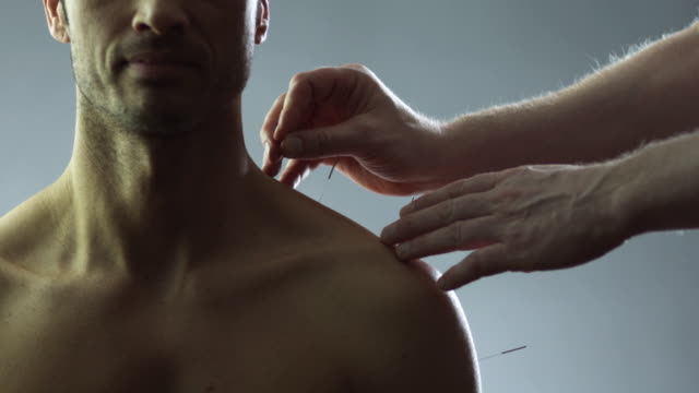 ms man applying acupuncture needles into woman's shoulder in studio / new york city, new york state, usa - acupuncture stock videos and b-roll footage