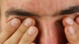 man blinks and scratches eyes with red allergic reaction, redness and peeling psoriasis on face skin, seasonal dermatology problem, close-up
