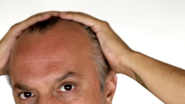 man checking hair loss - receding hairline - balding stock videos & royalty-free footage