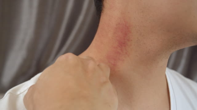 man has allergy and scratching on his neck. - allergy stock videos & royalty-free footage