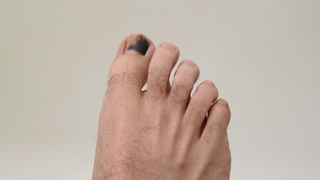 a man moving wound toe because wearing small shoes. - toe stock videos & royalty-free footage