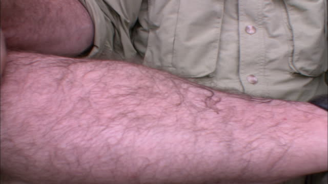 A man sits quietly with a swollen leech attached to his hairy leg.