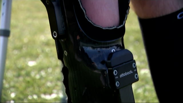 man walks with help of bionic leg brace simpson posing with golf club for photocall photographers taking pictures of simpson close shot leg brace... - leg brace stock videos and b-roll footage
