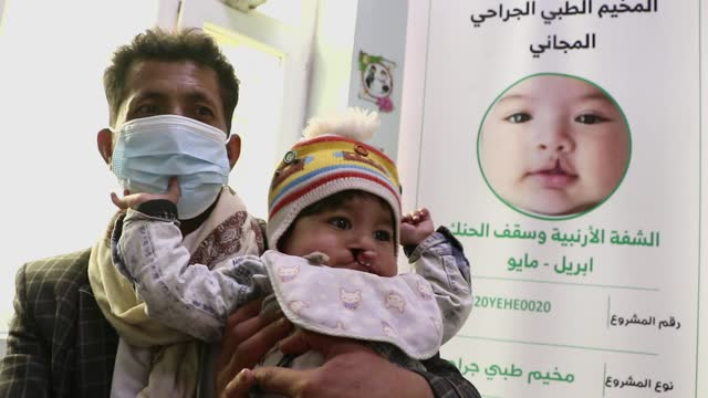 man, wearing a protective mask against the spread of covid-19, holds his child who has cleft palate to be checked during a charitable medical camp... - yemen stock videos & royalty-free footage
