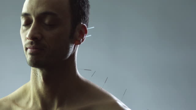 slo mo ms man with acupuncture needles in shoulder in studio / new york city, new york state, usa - acupuncture stock videos and b-roll footage