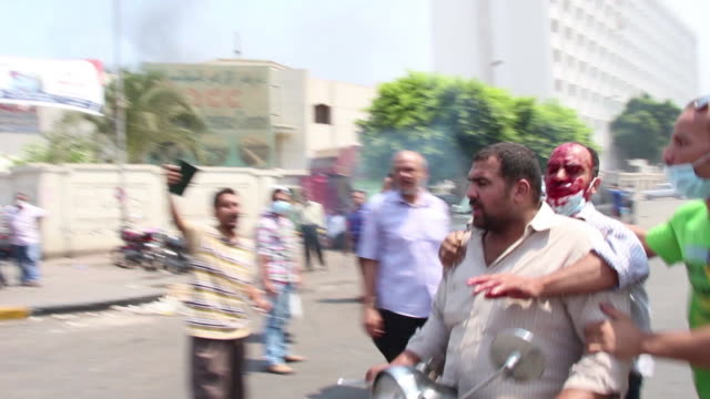 man with bloody face rides to the hospital on august 16, 2013 in cairo, egypt - coup d'état stock videos & royalty-free footage