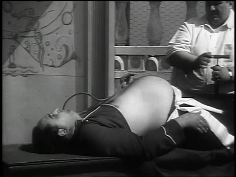 B/W 1937 MS man with enlarged stomach / other man using sledgehammer + metal bar to deflate stomach