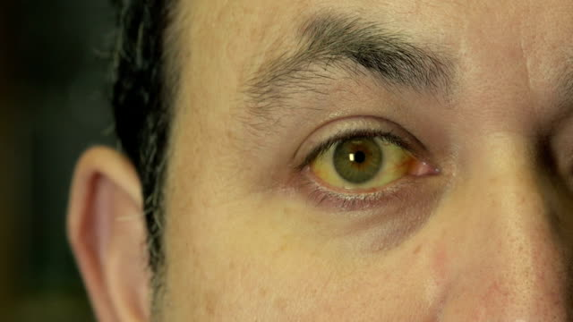 man with jaundice - liver stock videos and b-roll footage