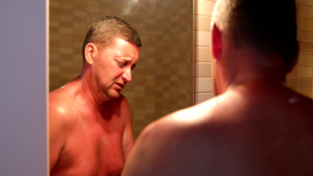 man with reddened, itchy skin after sunburn - hand back lit stock videos & royalty-free footage