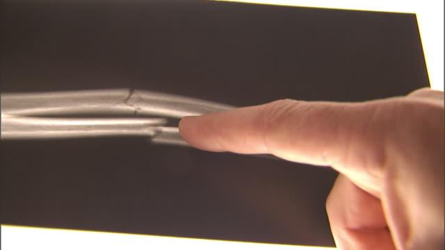 ecu, man's hand pointing on x-ray image of fractured human bone - 骨折点の映像素材/bロール