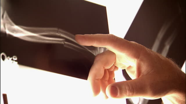 slo mo, ecu, man's hand pointing on x-ray image of fractured human bone - human bone stock videos & royalty-free footage