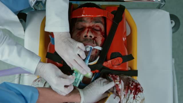 manually ventilating a young intubated car crash victim - blauer fleck stock-videos und b-roll-filmmaterial