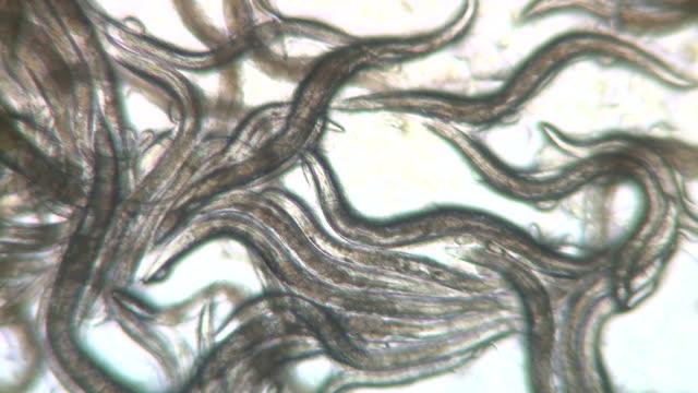 Mass of Caenorhabditis elegans nematodes feeding on bacteria (Escherischia coli OP50 strain) Olympus BH-2 microscope 4X S-Plan objective, NFK 2.5 X photoeyepiece, no condenser. Horizontal field of view 1.75mm.